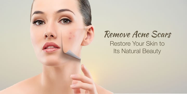Acne & Scars Removal in Mumbai